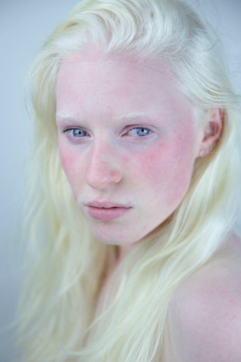 Obrázek albinowednesday3