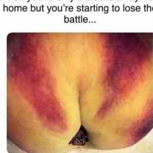 Obrázek 'Lose-the-battle'