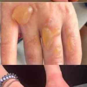 Obrázek 'prilismnohodesinfekceskodi'